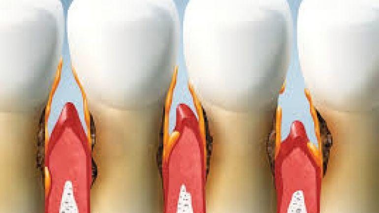Parodontite – Che cos'è la parodontite?