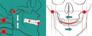 Parodontite avanzata