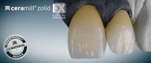 Corone dentali allergie