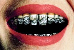 Sigarette e denti