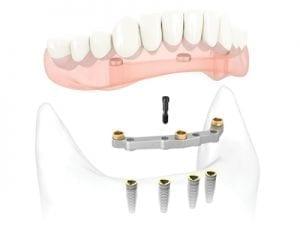 Protesi su barra dentale