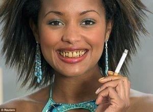 denti cariati dalle sigarette