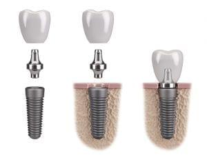 parti impianto dentale
