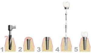procedura impianto dentale