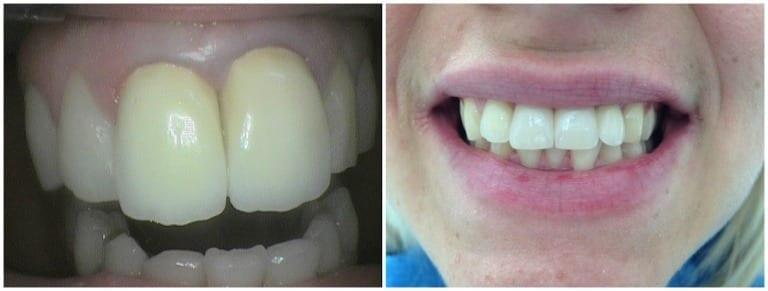 Lavoro fisso con impianti dentali