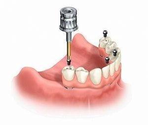 Ponte su impianti dentali