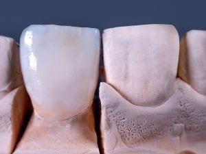 Tipi di corone in ceramica