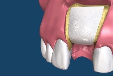 Membrana dentale per la rigenerazione dei difetti ossei