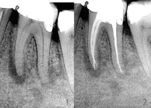 Infiammazione del dente