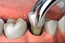 Estrazione del dente - Clinica dentale Croazia