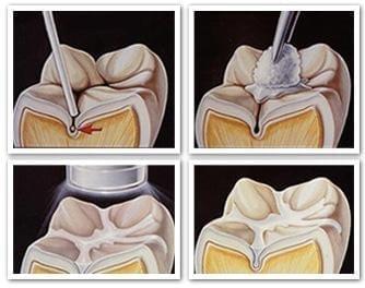 Sigillatura delle fessure - studio dentistico CentroDENT - Croazia