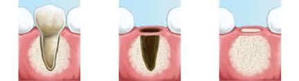 Estrazione dentale