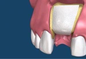Membrana dentale
