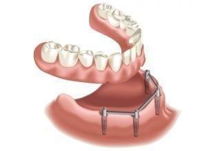 Protesi dentale su barra