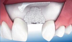 Rigenerazione dei difetti ossei