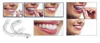 Bite dentali - clinica dentale CentroDENT Croazia