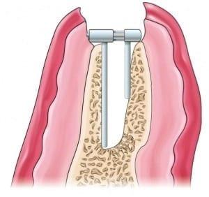 Livellazione della cresta alveolare