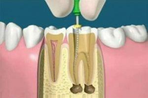 Fistola dentale