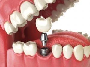 Quanto costa un impianto dentale?