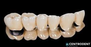 Capsula dentale
