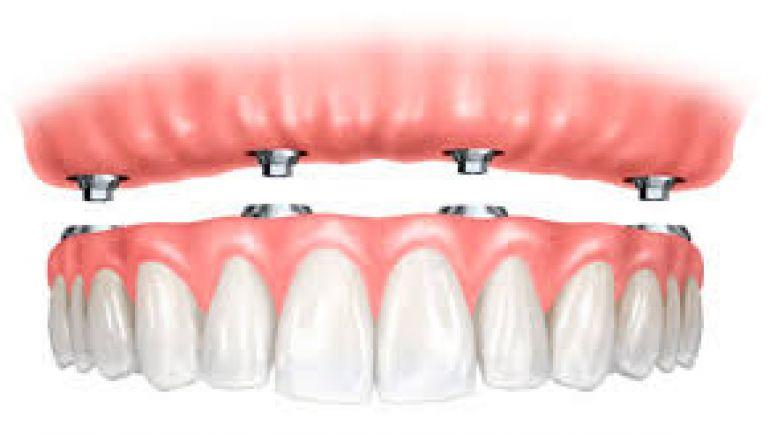 Tipi di protesi dentali – Il dentista mi offre diverse soluzioni. Quale scegliere?