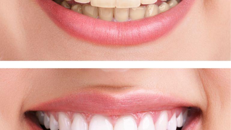 Dentisti Croazia – come funziona?