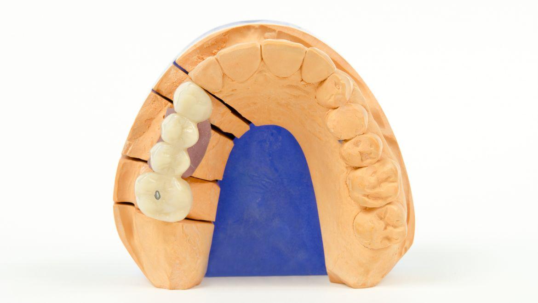 Denti provvisori – Che cosa sono e qual'è la loro funzione?